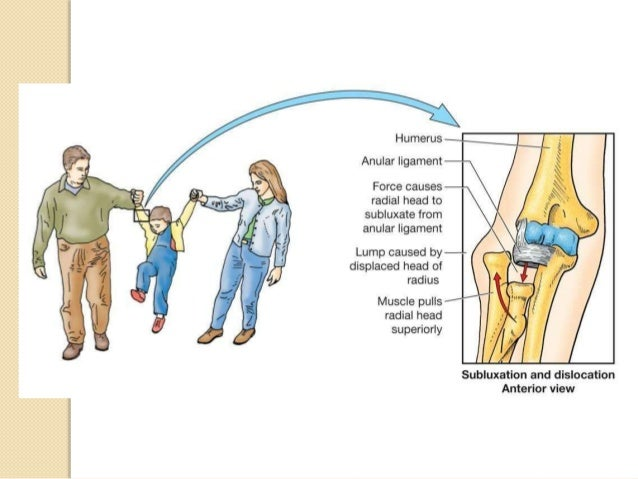 Axillary Nerve damage   Axillary nerve usually damaged by fractures  of surgical neck of humerus or due to an  inferior d...