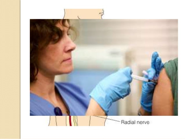 Radial Nerve Injury (Radial  Groove)   Causes:  ◦ Fracture of shaft of humerus  ◦ Improper intramuscular injection  ◦ Pro...
