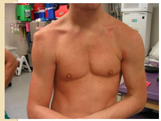 Frozen Shoulder   Pain and uniform limitation off all  movements of shoulder joint, though  there is NO evidence of radio...