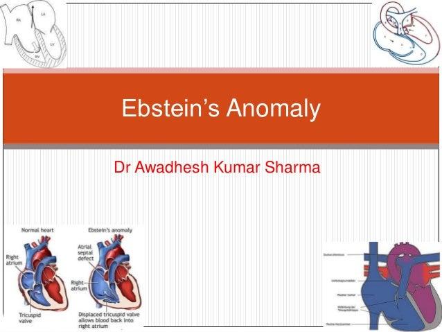 Dr Awadhesh Kumar SharmaEbstein's Anomaly