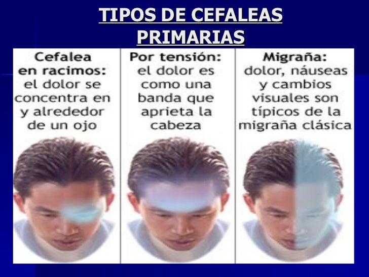 TIPOS DE CEFALEAS PRIMARIAS