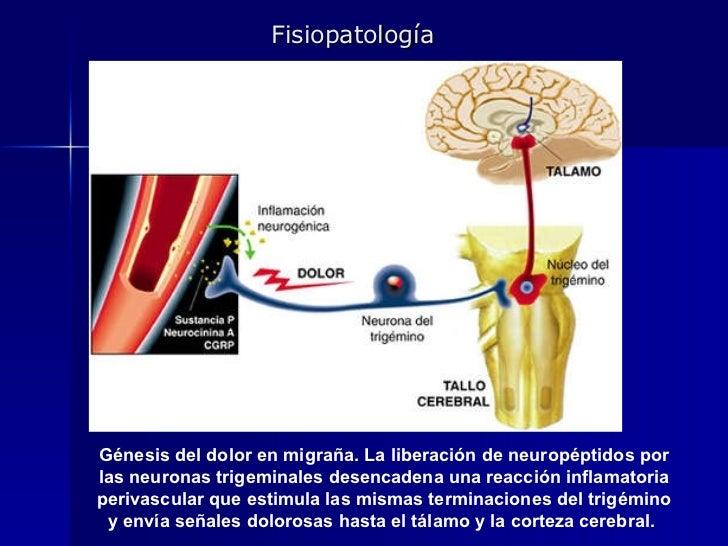 Génesis del dolor en migraña. La liberación de neuropéptidos por las neuronas trigeminales desencadena una reacción inflam...