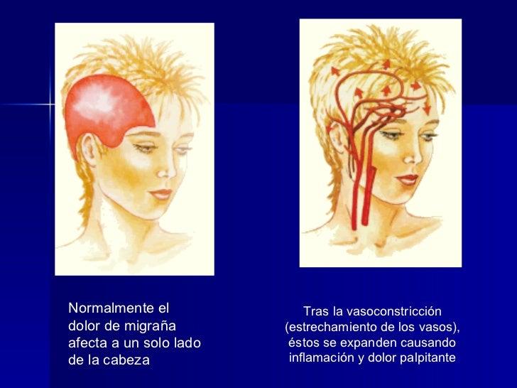 Normalmente el dolor de migraña afecta a un solo lado de la cabeza  Tras la vasoconstricción (estrechamiento de los vasos)...