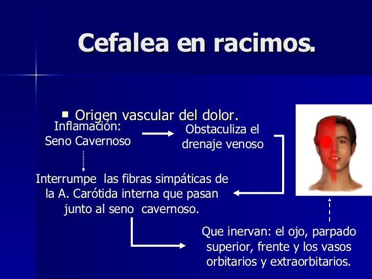 Cefalea en racimos. <ul><li>Origen vascular del dolor. </li></ul>Inflamación: Seno Cavernoso Obstaculiza el drenaje venoso...
