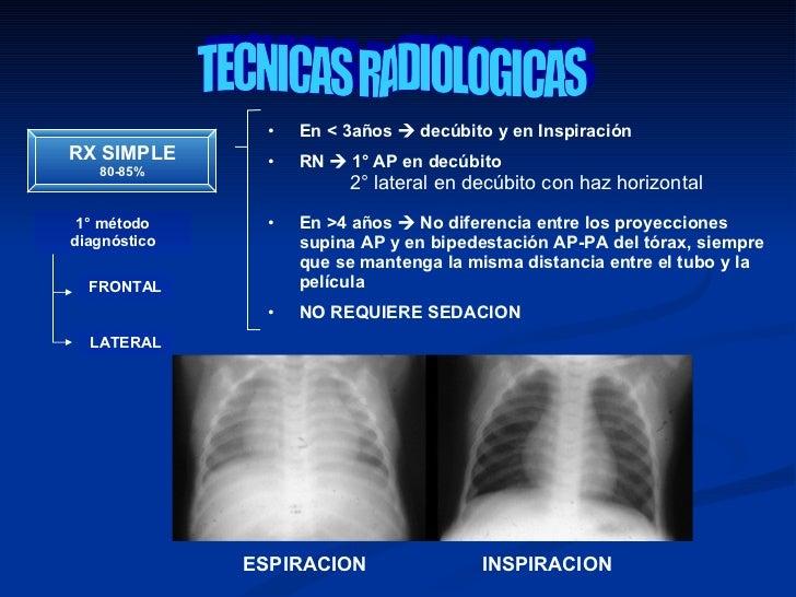 Interpretacion de radiografia de torax