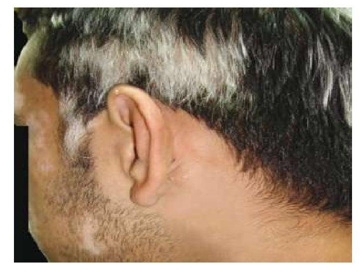 El aceite de bardana para los cabellos se quita fácilmente