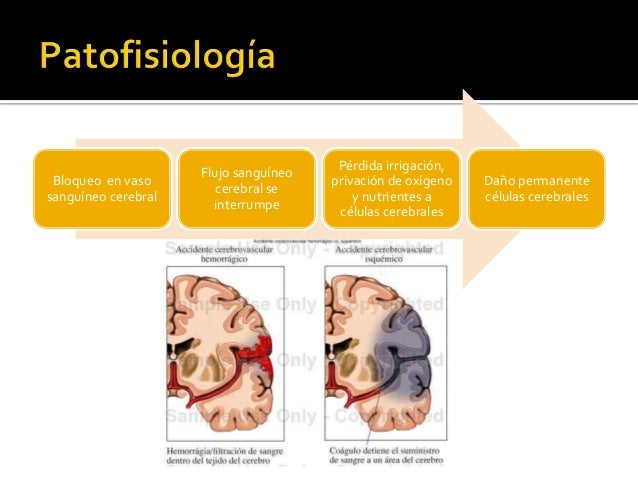 Bloqueo en vaso sanguíneo cerebral Flujo sanguíneo cerebral se interrumpe Pérdida irrigación, privación de oxígeno y nutri...