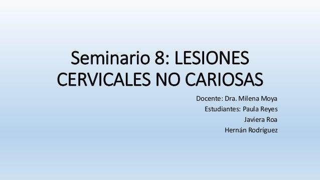 Seminario 8: LESIONES CERVICALES NO CARIOSAS Docente: Dra. Milena Moya Estudiantes: Paula Reyes Javiera Roa Hernán Rodrígu...