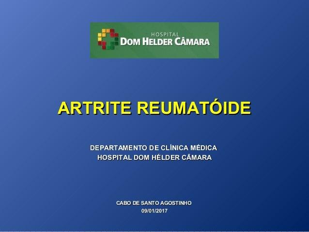 Artrite reumatoide: cos'è, cause e sintomi