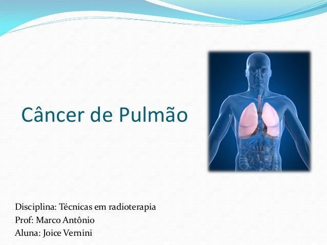 Câncer de Pulmão Disciplina: Técnicas em radioterapia Prof: Marco Antônio Aluna: Joice Vernini