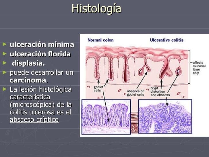 Colitis Ulcerativa Cronica Inespecifica Cuci