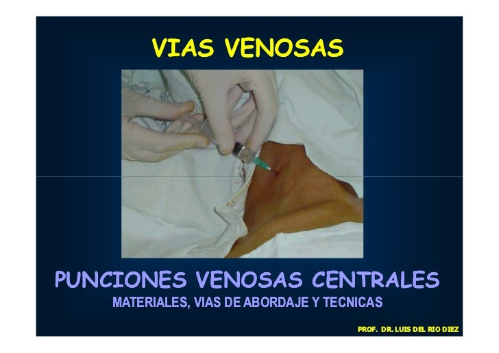 VIAS VENOSASPUNCIONES VENOSAS CENTRALES    MATERIALES, VIAS DE ABORDAJE Y TECNICAS                                       P...
