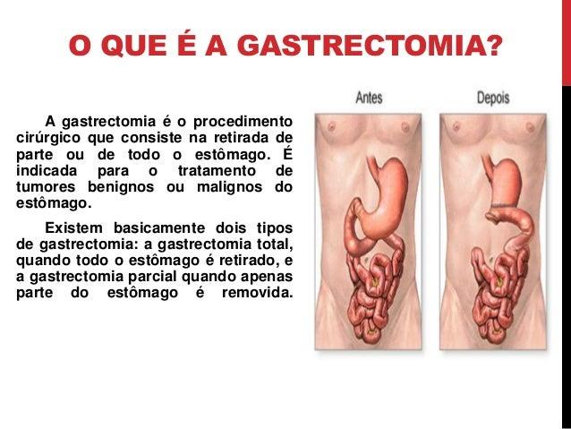 O QUE É A GASTRECTOMIA? A gastrectomia é o procedimento cirúrgico que consiste na retirada de parte ou de todo o estômago....