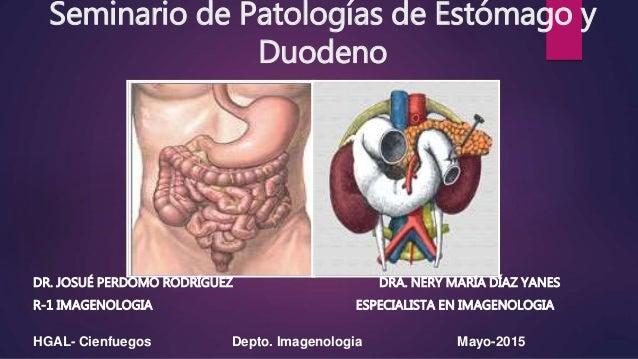 Seminario de Patologías de Estómago y Duodeno DR. JOSUÉ PERDOMO RODRÍGUEZ DRA. NERY MARÍA DÍAZ YANES R-1 IMAGENOLOGIA ESPE...
