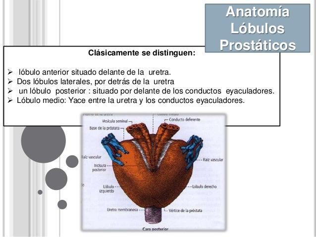 Seminario de Prostata. Urologia
