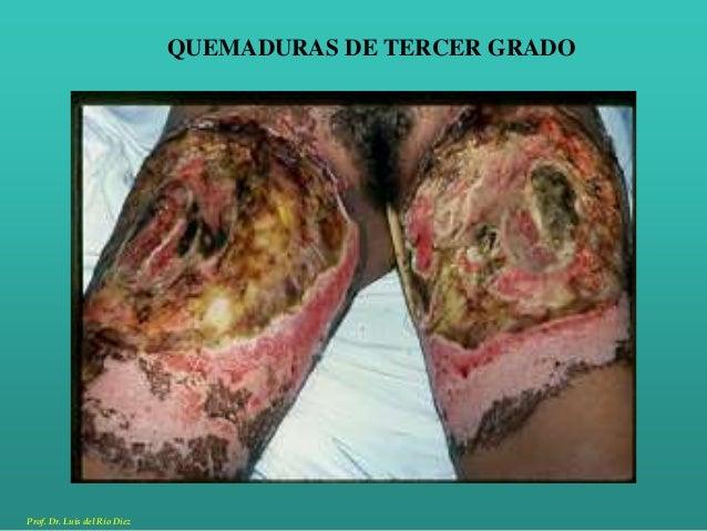 Seminario de quemaduras en clinica quirurgica for Quemaduras de cuarto grado