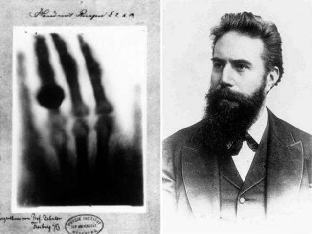 1897 W.B. Cannon, si a un animal se le a ingerir bismuto, con los rayos X se puede observar su estomago y aparato digestiv...