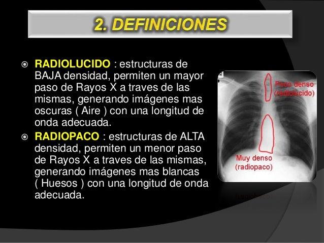 CRANEO PA CRANEO LAT CERVICAL AP TRANSORAL CERVICAL LAT. EN HIPEREXTENSION / HIPERFLEXION CERVICAL LATERAL
