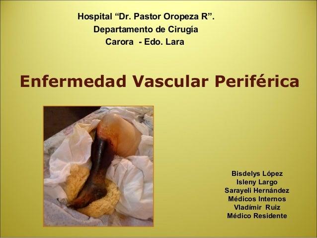 "Hospital ""Dr. Pastor Oropeza R"".         Departamento de Cirugía            Carora - Edo. LaraEnfermedad Vascular Periféri..."