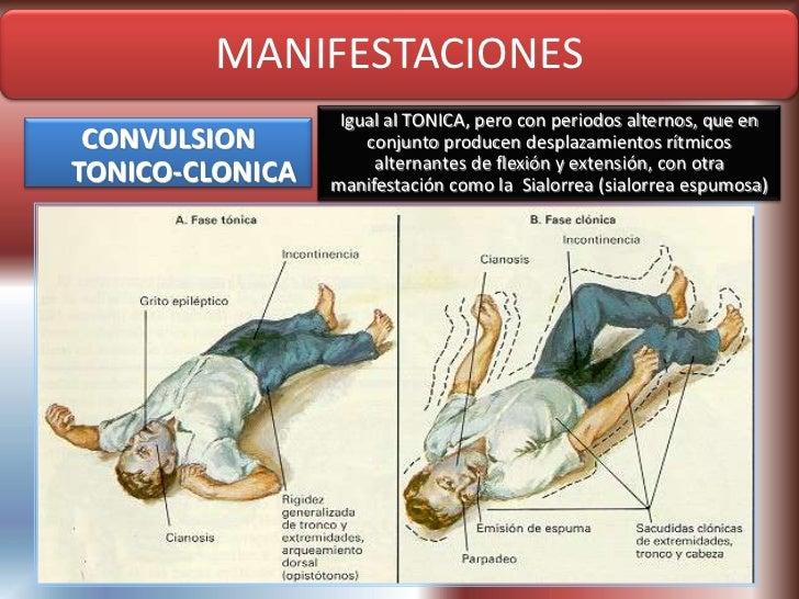CONVULSIONES TONICO CLONICAS EBOOK