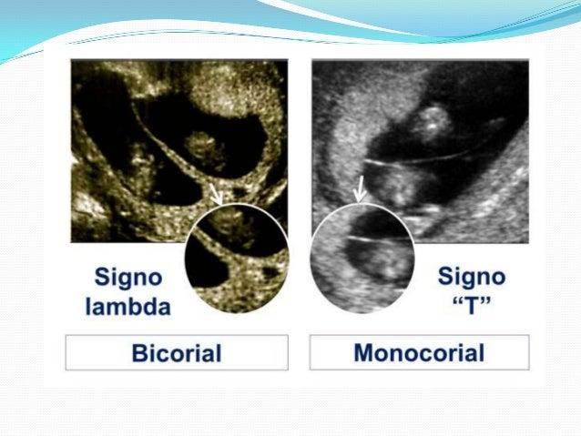 11 semanas de embarazo ecografia related keywords - Ecografia 3 meses ...