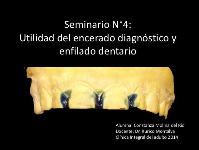 Seminario N°4: Utilidad del encerado diagnóstico y enfilado dentario Alumna: Constanza Molina del Río Docente: Dr. Rurico ...