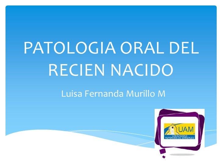 PATOLOGIA ORAL DEL  RECIEN NACIDO   Luisa Fernanda Murillo M