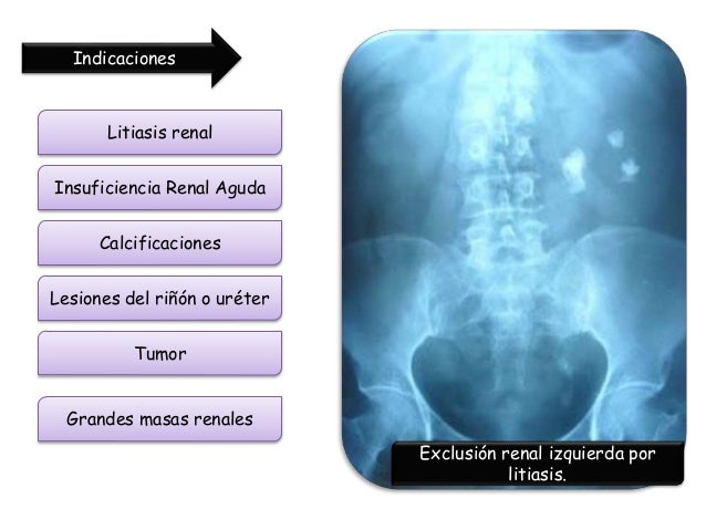 rc bote with Rrx Abdomen Renal Y Pelvis Simple on Copa Vino 35 Cl Sumiller 2956 in addition K4 Vasos 23 Cl Chiquito 2074 moreover Visita A Ilha Do C eche Em Florianopolis E Viagem A Pre Historia Catarinense 3437649 furthermore Gua Prctica En Hoteles likewise Motor brushless dualsky 4250ca 7.