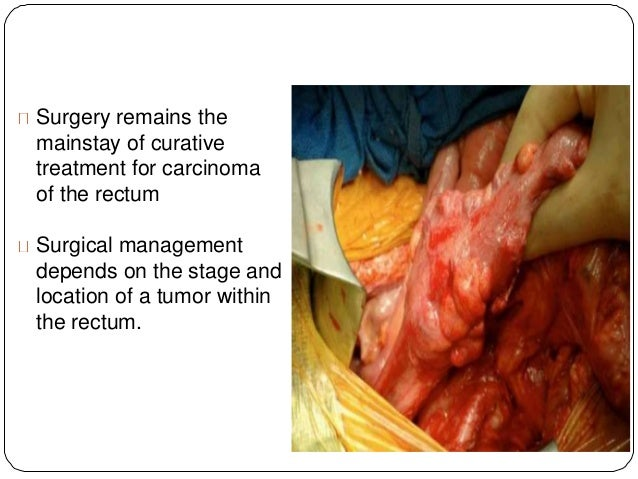 Management Of Rectal Cancer
