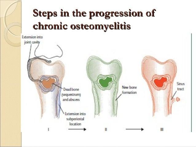 chronic osteomyelitis Chronic recurrent multifocal osteomyelitis (crmo), also known as chronic nonbacterial osteomyelitis, is an orphan disease that manifests as recurrent flares of.