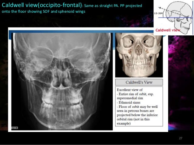 Conventional Radiography In Maxillofacial Trauma