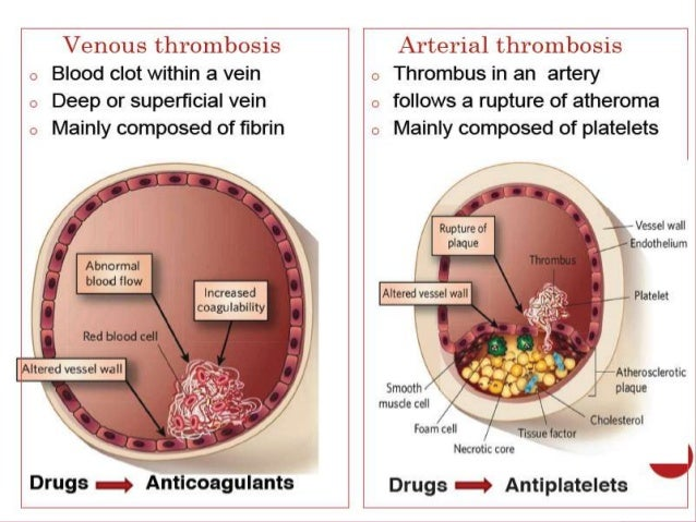 INTRODUCTION For decades, oral Vitamin K Antagonists (VKA) have ruled the roost as anticoagulants. A narrow therapeutic ra...