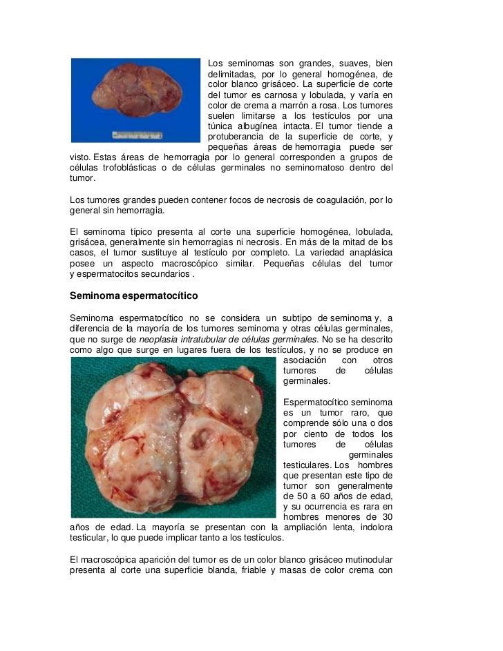 Seminoma testicular