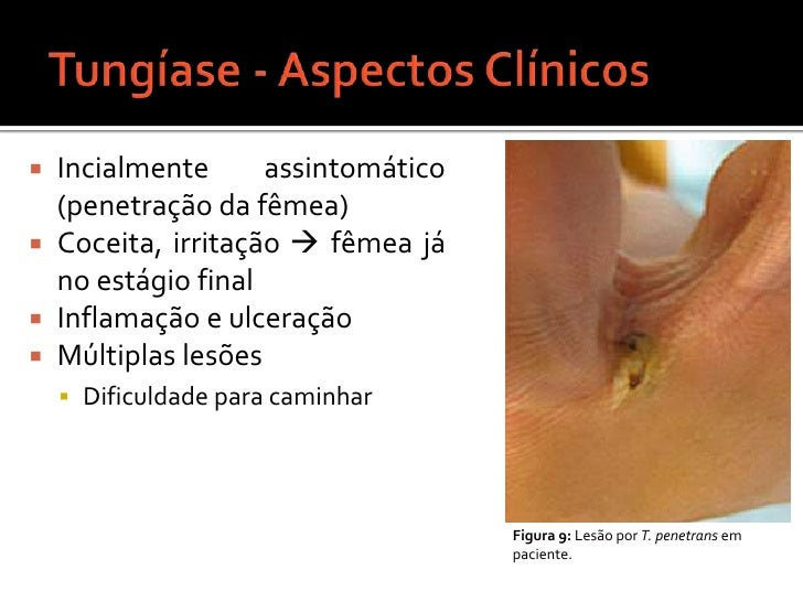 Tungíase - Aspectos Clínicos<br />Incialmente assintomático (penetração da fêmea)<br />Coceita, irritação  fêmea já no es...
