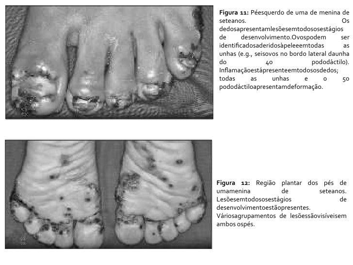 Figura 11: Péesquerdo de uma de menina de seteanos. Os dedosapresentamlesõesemtodososestágios de desenvolvimento.Ovospodem...
