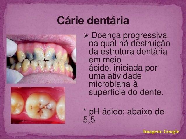  Doença progressiva na qual há destruição da estrutura dentária em meio ácido, iniciada por uma atividade microbiana à su...
