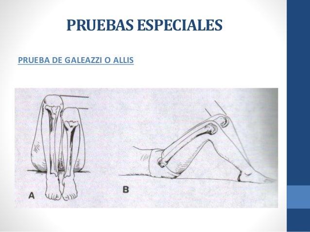Semiogia de cadera - Ortopedia y Traumatologia