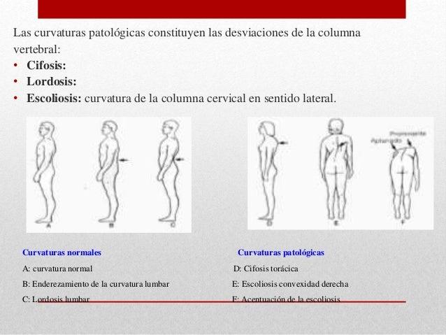 Semiología de la columna vertebral
