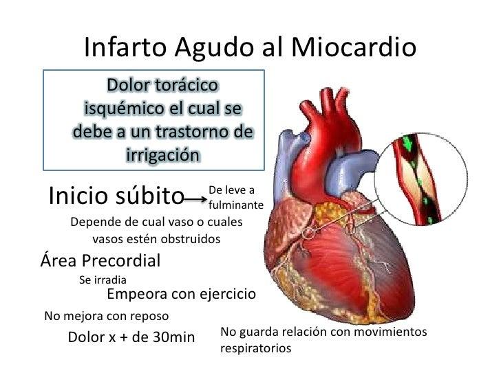 El infarto agudo de miocardio