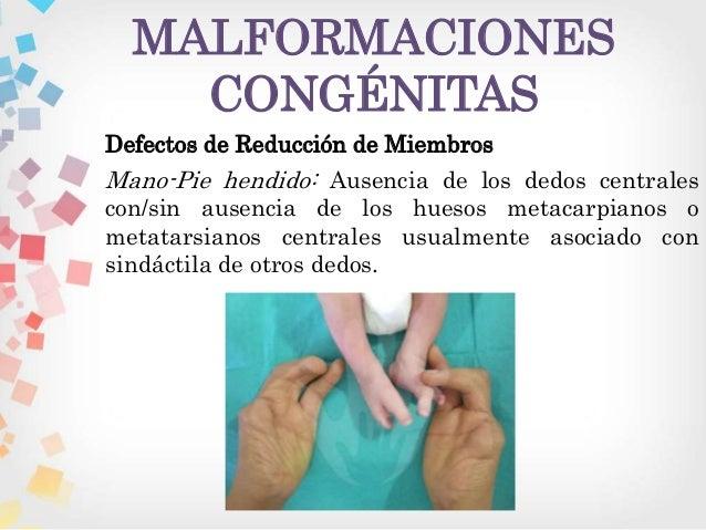 remedios caseros para gota en el pie acido urico wikipedia la enciclopedia libre acido urico valor normal en mujeres