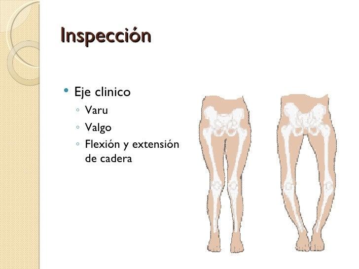 Increíble Flexor De La Cadera Profunda En La Pelvis Bosquejo ...