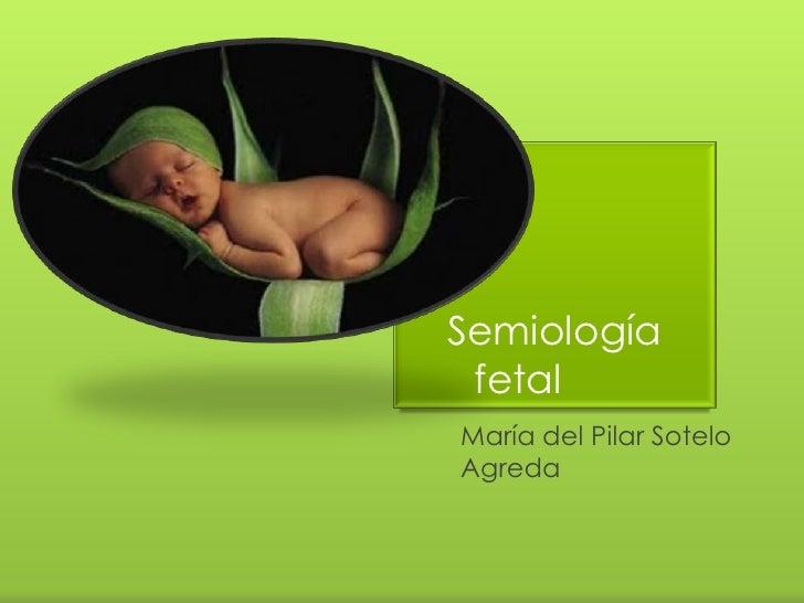 Semiología fetal<br />María del Pilar Sotelo Agreda<br />