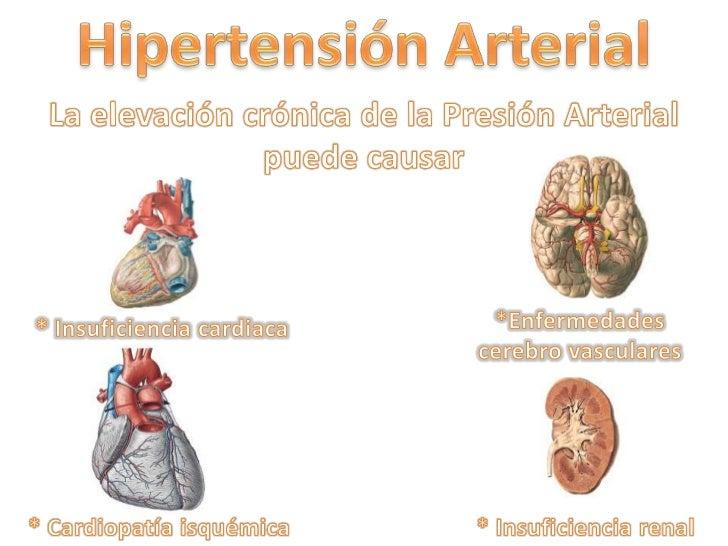 Semiología de la hipertensión arterial