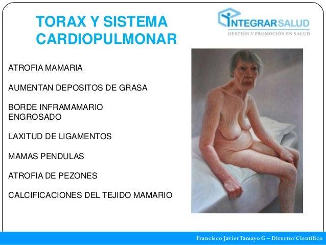 TORAX Y SISTEMA     CARDIOPULMONARATROFIA MAMARIAAUMENTAN DEPOSITOS DE GRASABORDE INFRAMAMARIOENGROSADOLAXITUD DE LIGAMENT...