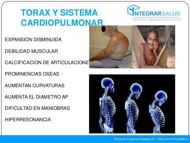 TORAX Y SISTEMA     CARDIOPULMONAREXPANSION DISMINUIDADEBILIDAD MUSCULARCALCIFICACION DE ARTICULACIONESPROMINENCIAS OSEASA...