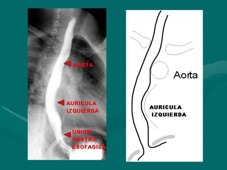 Semiologia Radiologica de Aparato Digestivo Slide 3