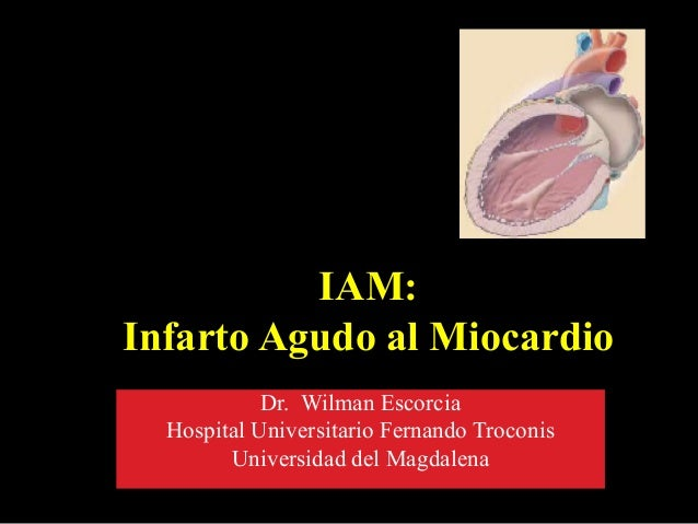 IAM: Infarto Agudo al Miocardio Dr. Wilman Escorcia Hospital Universitario Fernando Troconis Universidad del Magdalena
