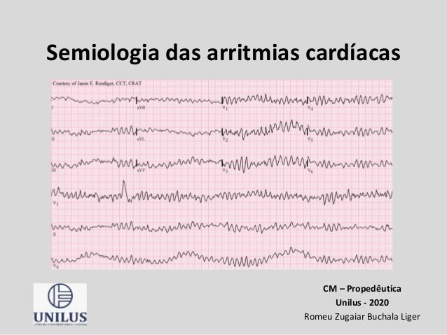Semiologia das arritmias cardíacas CM – Propedêutica Unilus - 2020 Romeu Zugaiar Buchala Liger