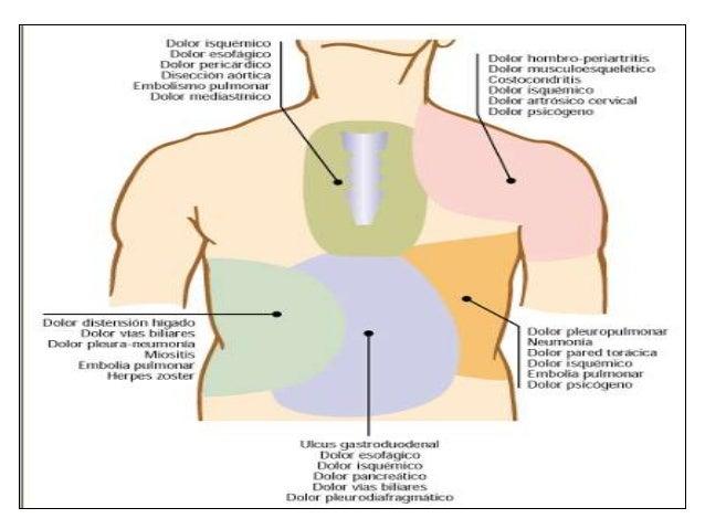 Que ungüento aplican a la osteocondrosis