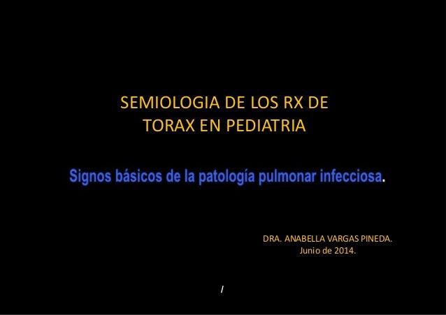 SEMIOLOGIA DE LOS RX DE TORAX EN PEDIATRIA DRA. ANABELLA VARGAS PINEDA. Junio de 2014.